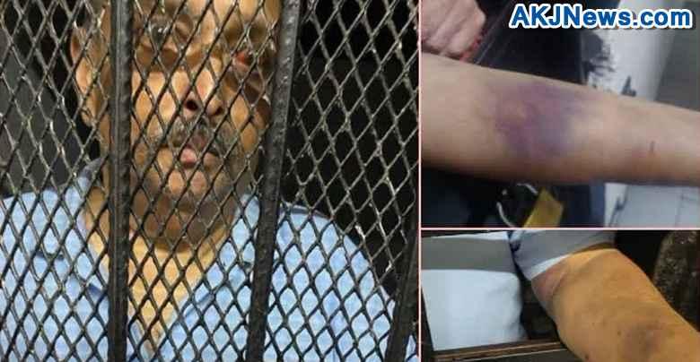 India's fugitive Mehul Choksi was beaten up abroad,